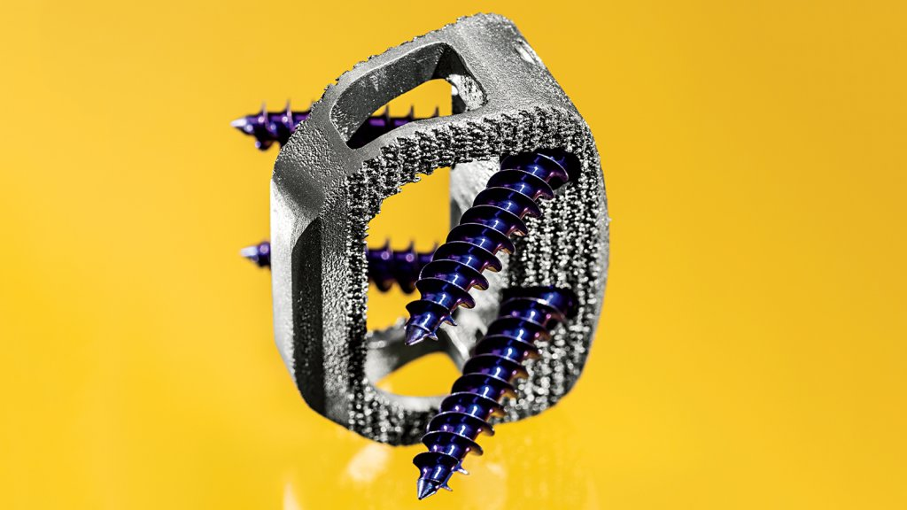 Acuity Surgical developed this titanium spinal device, the A-Link Z, on a 3-D printer.