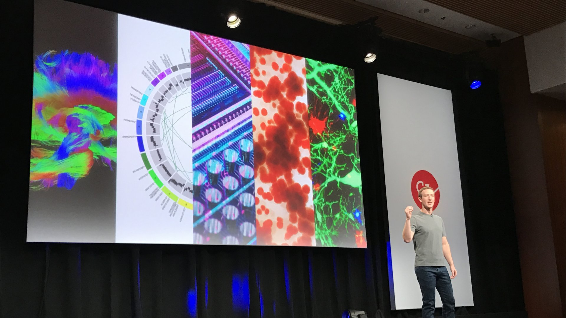 Mark Zuckerberg speaks at UCSF's Mission Bay campus as the Chan Zuckerberg Initiative commits $3 billion toward finding cures for all diseases.