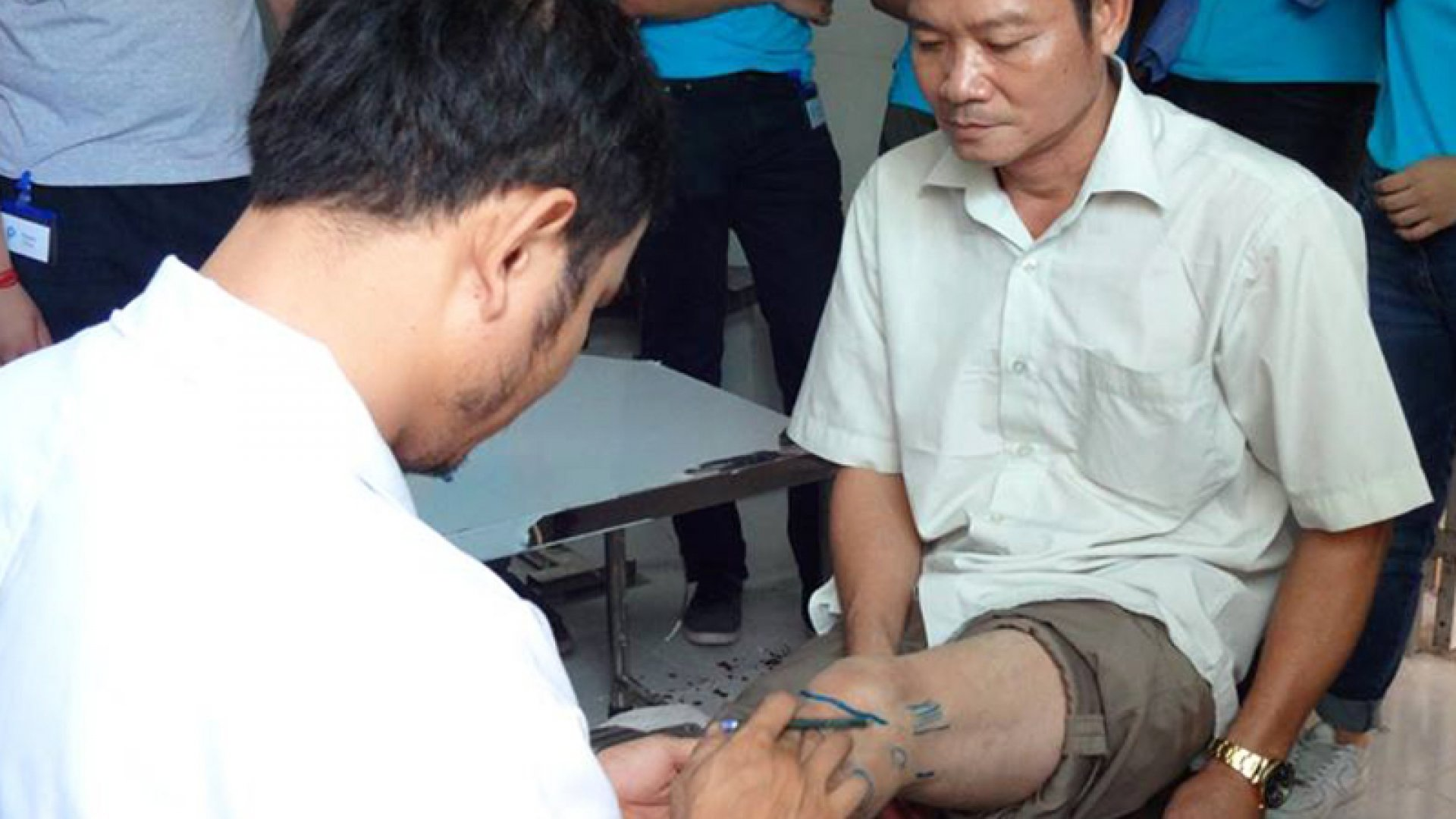 Man being fitted for a used prosthetic.