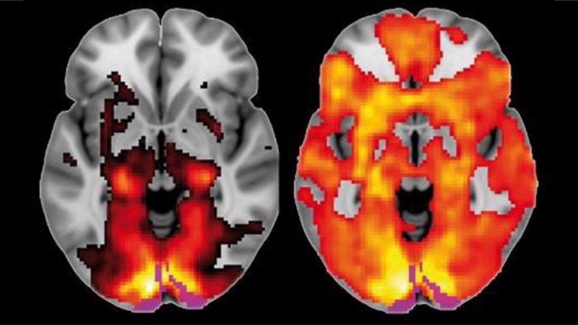 Brain scan images show how a brain on LSD (on the right) has increased blood flow and electrical activity.
