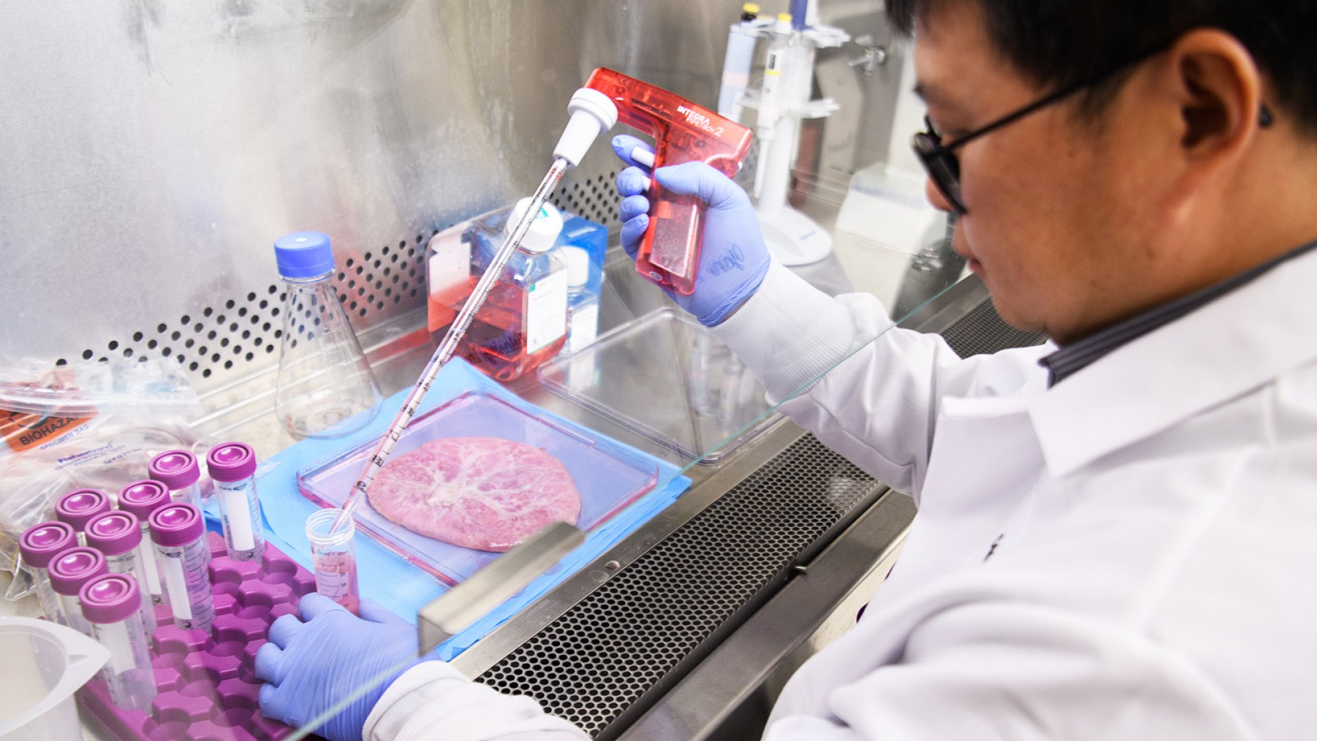 A scientist handles stem cells extracted from a human placenta.