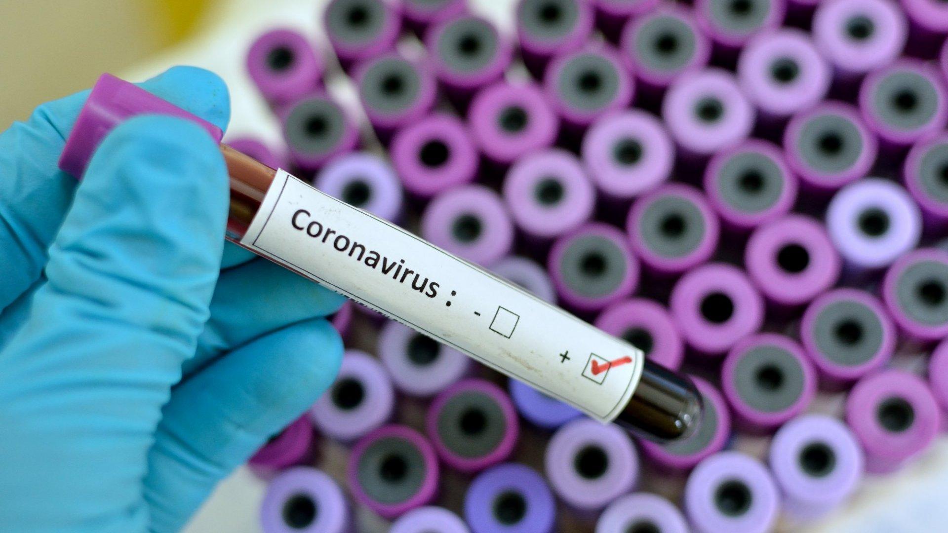 Fake Coronavirus Posts Show How Big Tech Fails at Containing Harmful Information