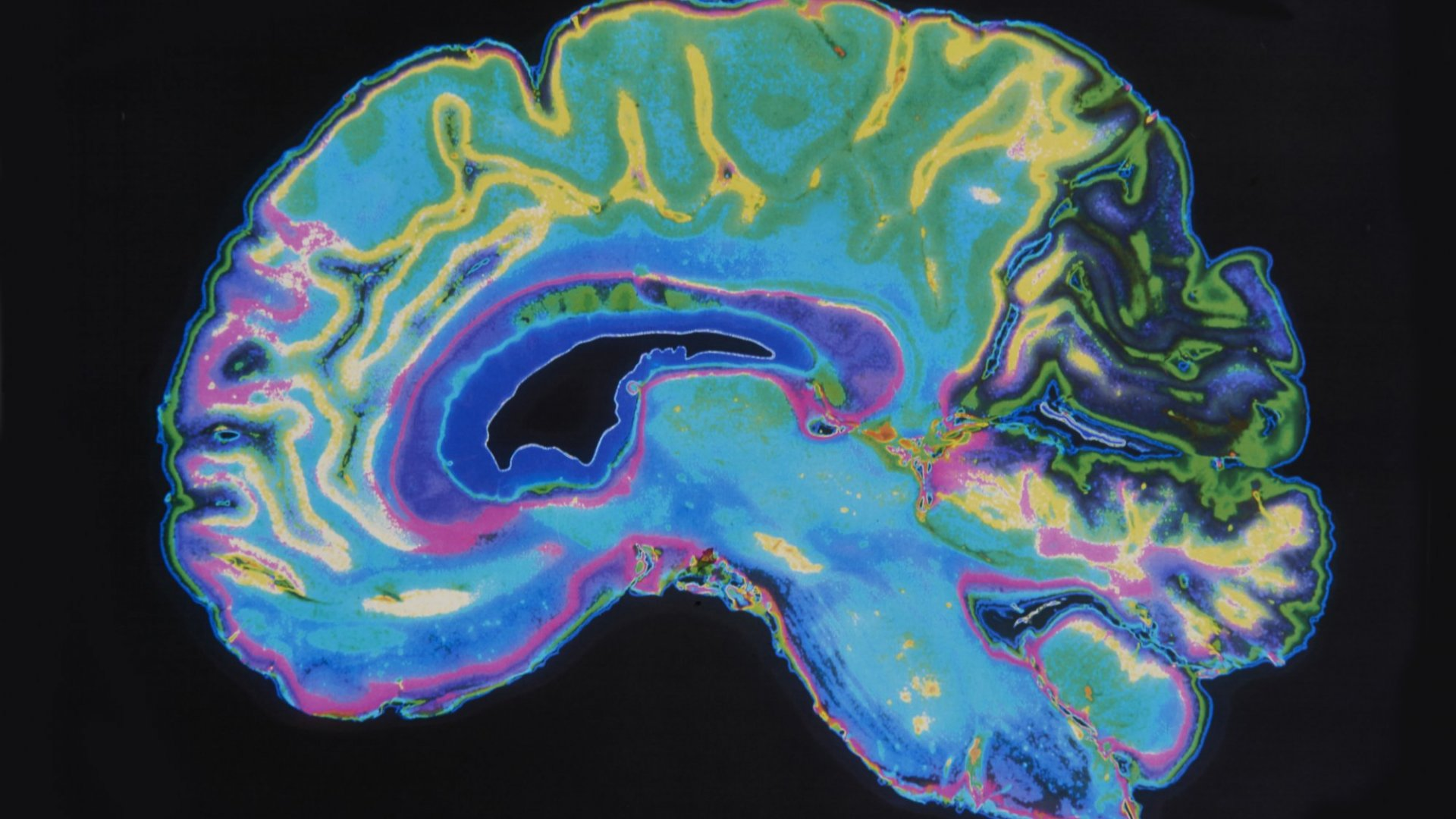 The 1 Sure Way to Get People to Like You, According to Brain Scans