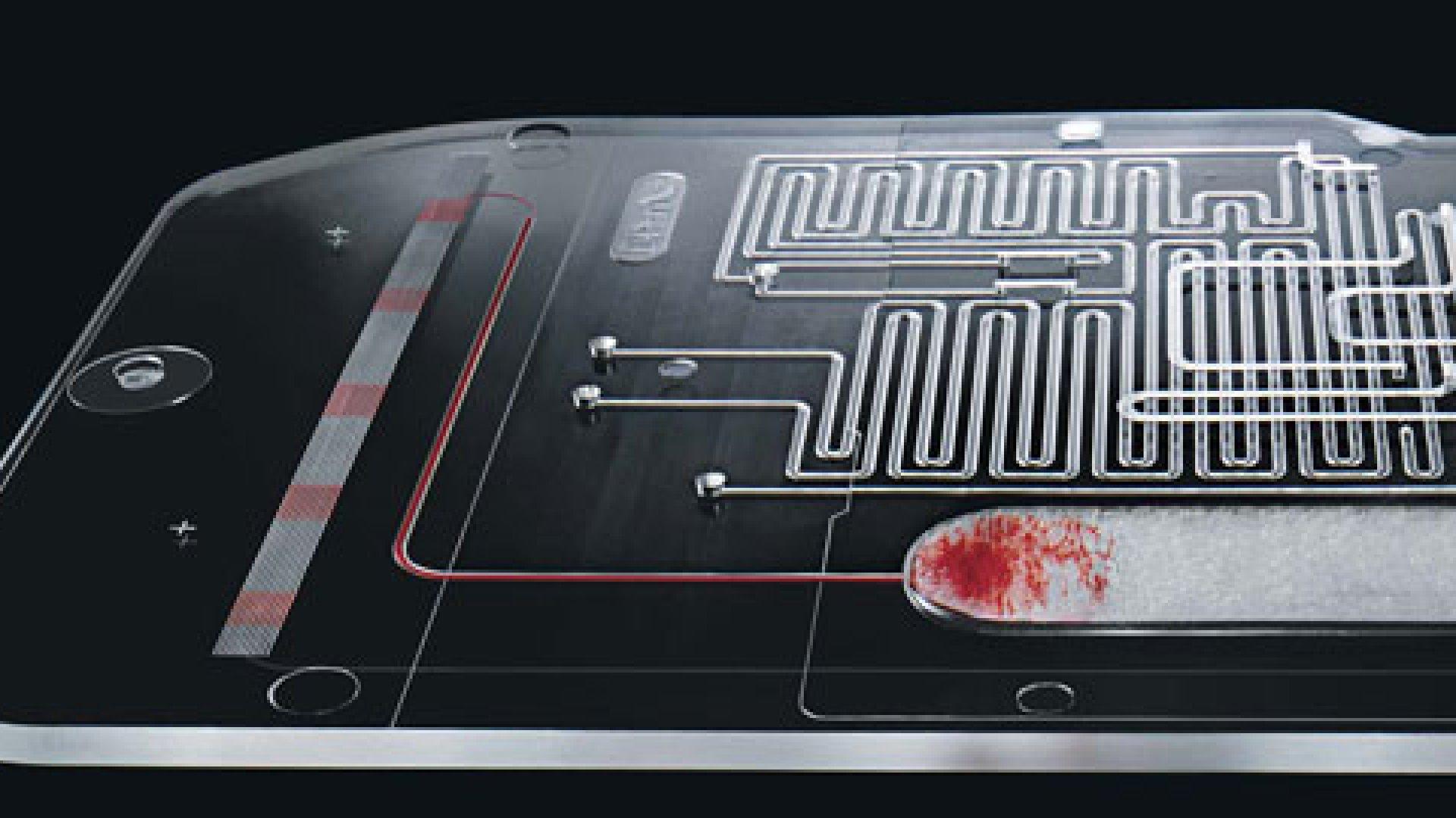 Innovation: A Blood Test on a Chip