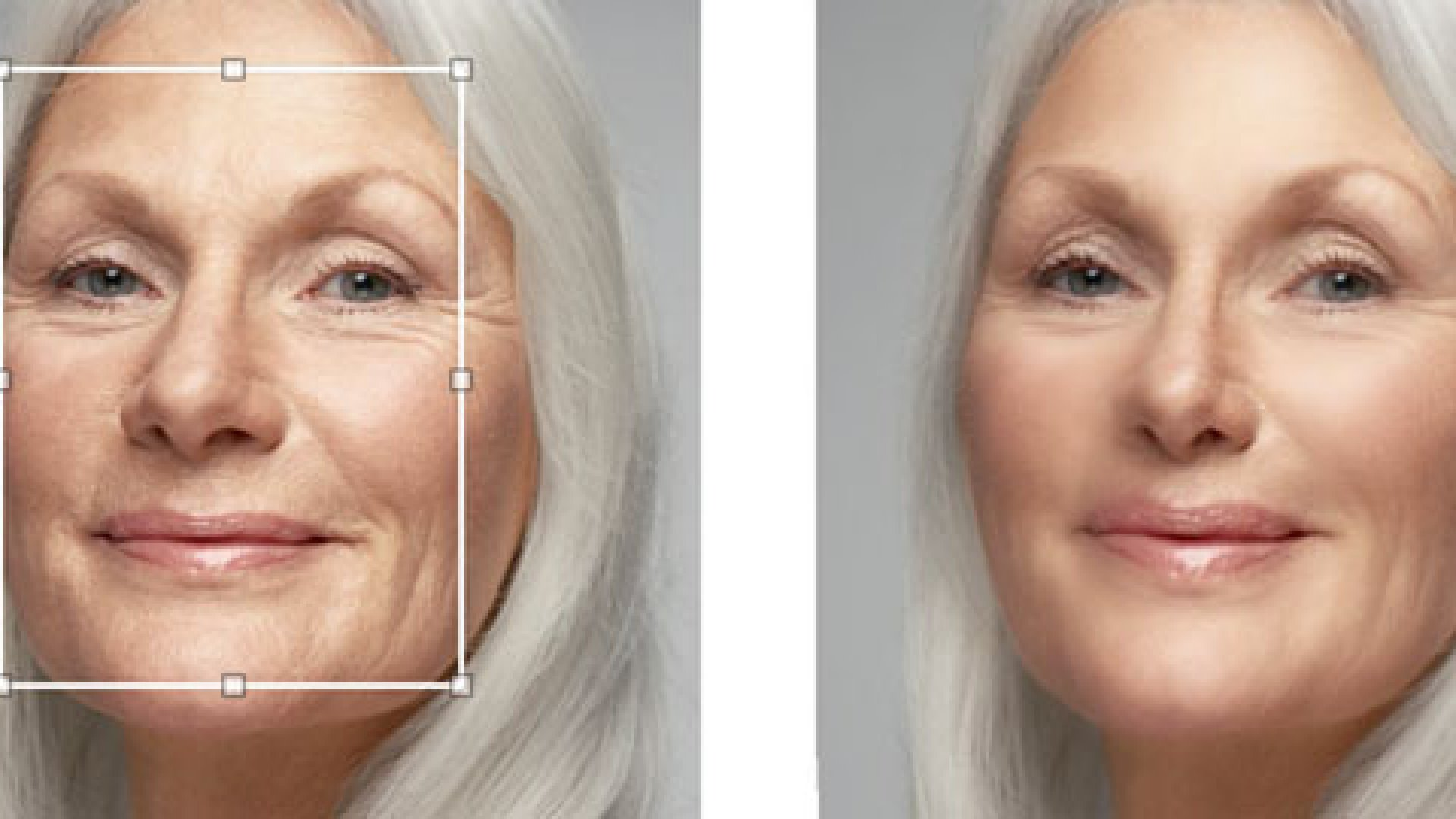 <strong>BEFORE AND AFTER</strong> ModiFace performs a face-lift and nose job.