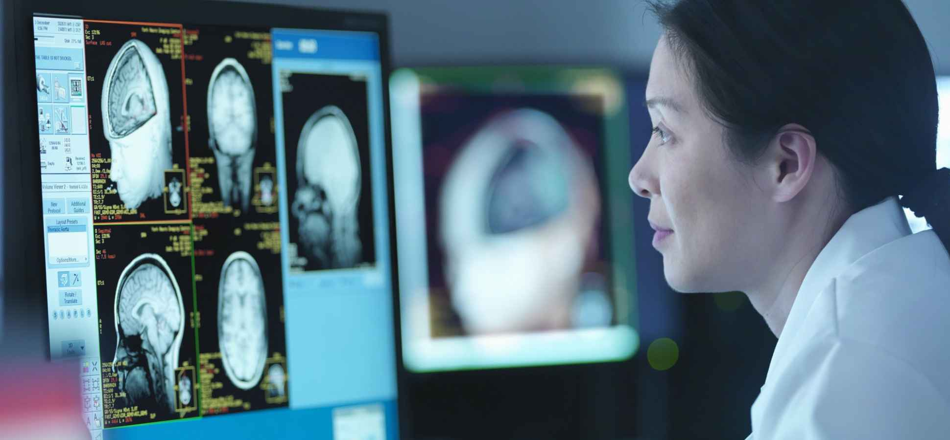 Neuroscientists Can Now Tell How Smart You Are From a Brain Scan