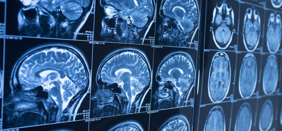 Resultado de imagem para brain shield protection